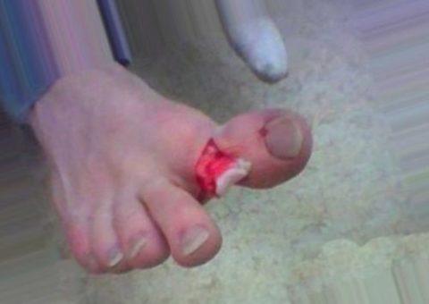 Ярко выраженная деформация травмированного пальца на ноге
