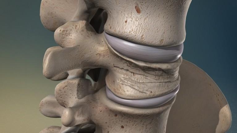 Особенности компрессионного перелома позвоночника