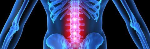 Болевой синдром в области спины после удара как основной симптом перелома