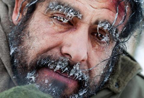 Чаще всего холодовые травмы возникают из-за длительного воздействия низких температур.
