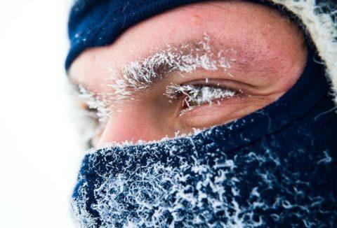 Чем опасно обморожение
