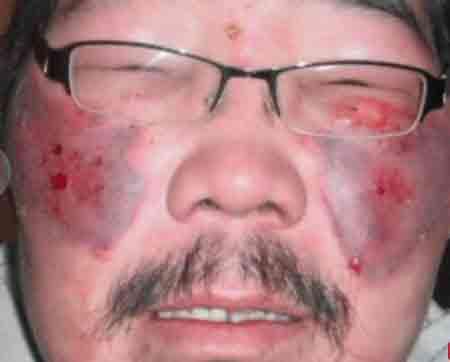 Чувствительная кожа лица наиболее уязвима при воздействии низких температур.