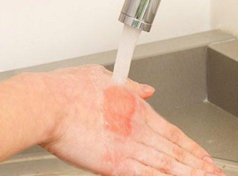 Для снятия боли рекомендуется охладить пораженную кожу под струей проточной воды.