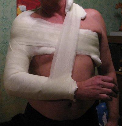 Другой вариант наложения гипса на плечевую кость