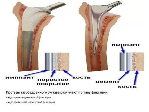 Эндопротезы с цементной и бесцементной фиксацией