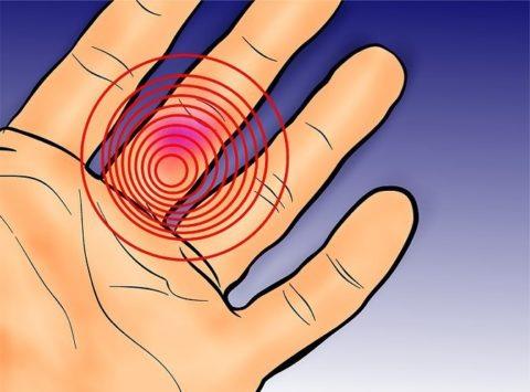 Факторы, предрасполагающие к нарушению целостности кости пальцев