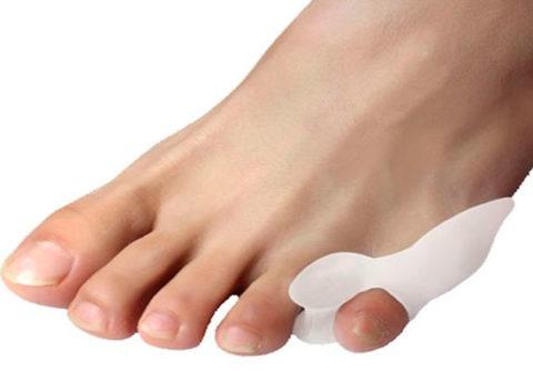 Фиксация поврежденного мизинца на ноге