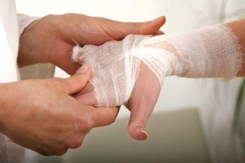 Фиксирующая повязка перед наложением гипсовой повязки