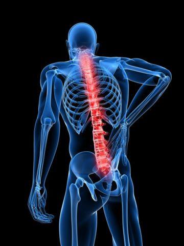 Фото: нарушенная целостность позвоночного столба у пациента