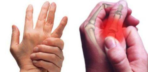 Фото: причины повреждения целостности пальцев