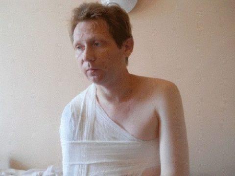 Гипсовая иммобилизация плечевой кости при переломе