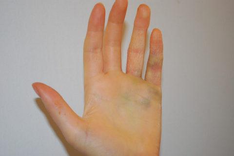 Главные отличительные характеристики ушиба пальца от его перелома
