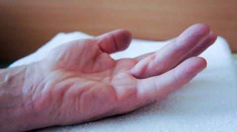 Характерная симптоматика травм безымянного пальца со сломанной костью