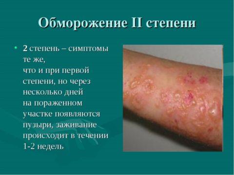 Холодовое повреждение 2-ой степени проявляет себя появлением на коже пузырей, лечения требует в отдельных случаях по показаниям.