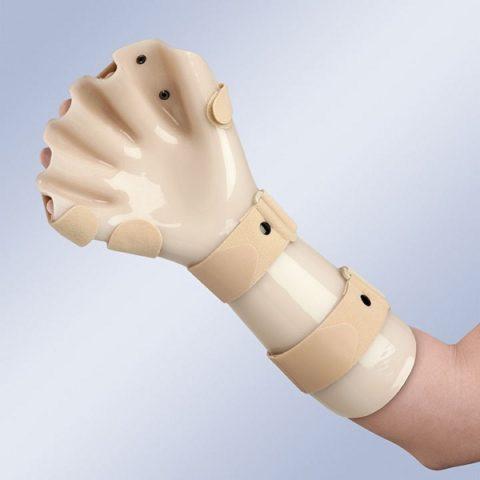 Иногда, при тяжелых поражениях глубоких слоев кожных покровов вследствие низких температур, потребуется гипсовая иммобилизация.