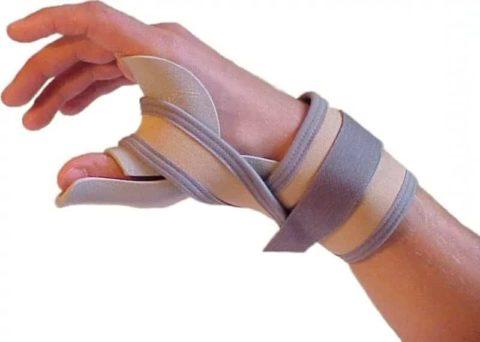 Использование фиксирующей повязки для сохранения нормального положения пальца