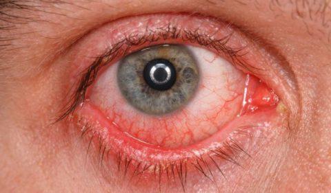 Как сохранить здоровье зрения.