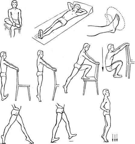 Комплекс упражнений в тренировочный период. Направлен на восстановление всех функций ранее травмированной конечности.