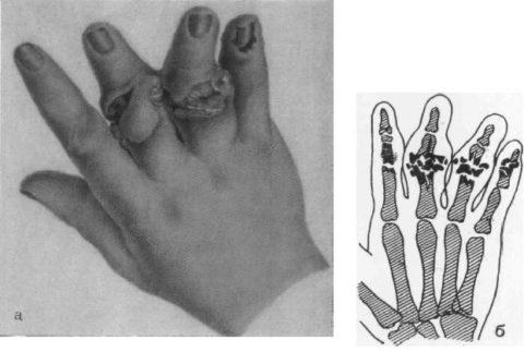 Костные фрагменты при открытом виде повреждения пальцев