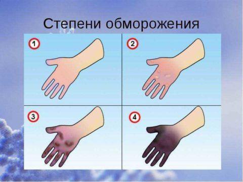 Любому человеку не помешает знать степени обморожения, а также присущие каждой симптомы и возможные последствия.
