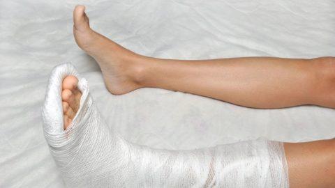 Накладывание фиксирующего гипса для обездвижения сломанных пальцев