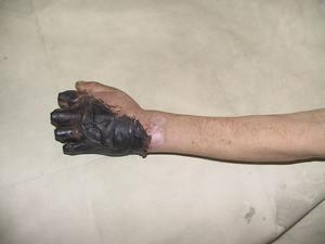 Некроз тканей, требующий хирургического вмешательства