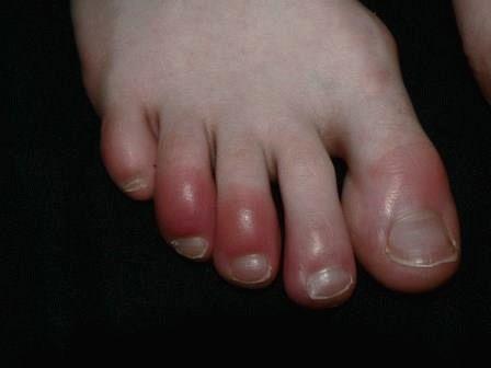Обувь неправильного размера способствует быстрейшему переохлаждению пальцев нижних конечностей.
