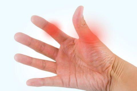 Основные характеристики для отличия ушиба от нарушения целостности кости фаланг