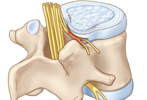 Особенности реабилитационного периода при компрессионном переломе
