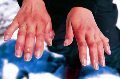 От схемы действий после получения холодовой травмы во многом зависит процесс восстановления.