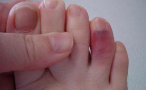 Перелом безымянного пальца и сопутствующие травмы сосудов и суставов