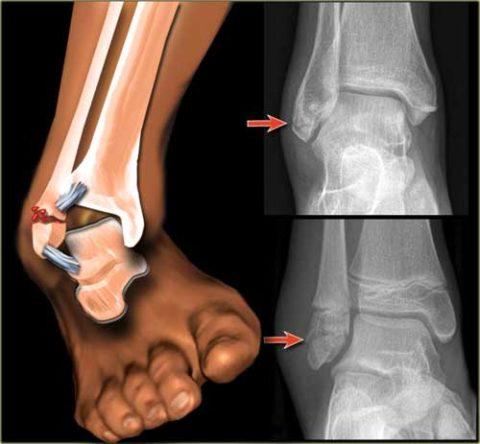 Перелом лодыжки со смещением. Рентгеновский снимок.