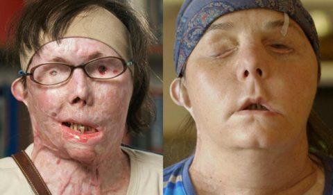 Пересадка кожи – шанс для многих пациентов