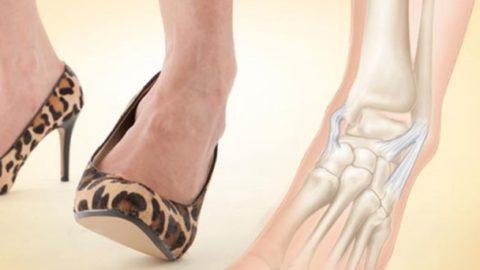 Подвернулась нога на шпильке, отекла и болит? Возможно это симптомы перелома Джонса