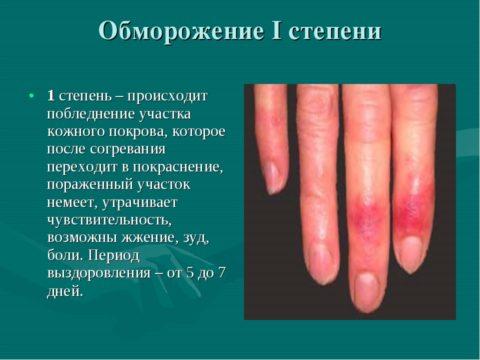 Повреждение мягких тканей холодом 1-ой степени специфической терапии не требует, а полное восстановление поврежденных поверхностей кожи происходит сроком до 1 недели.