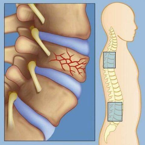 Повреждения позвоночного столба в разных областях
