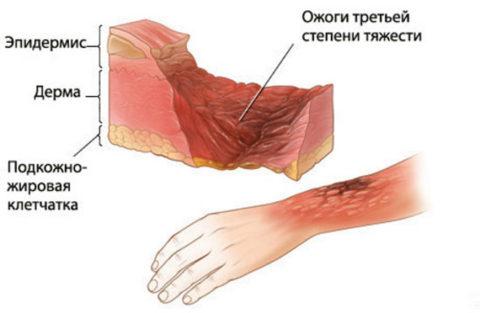 Повреждены все слои кожи