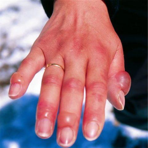 Появление пузырей на коже