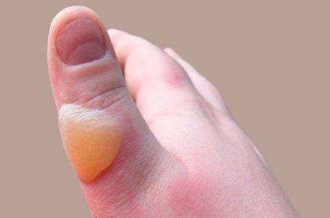 При 2-ой и 3-ей степени обморожения на коже образуются характерные пузыри.