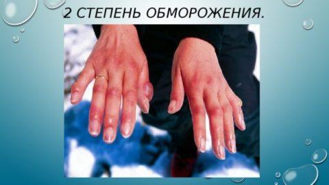 При длительном переохлаждении может возникнуть холодовая травма 2-ой степени.