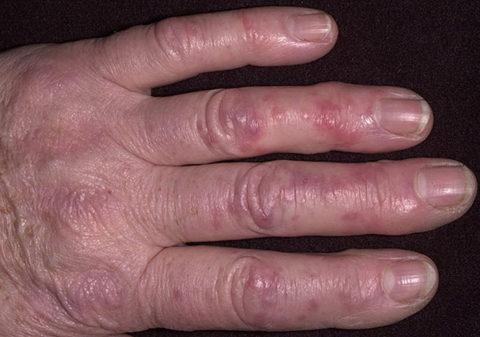 При холодовом повреждении 1-ой степени происходит небольшое обратимое повреждение поверхностных слоев кожных покровов.