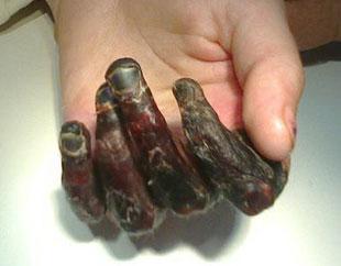 При холодовых повреждениях 4-ой стадии образуются участки некроза.