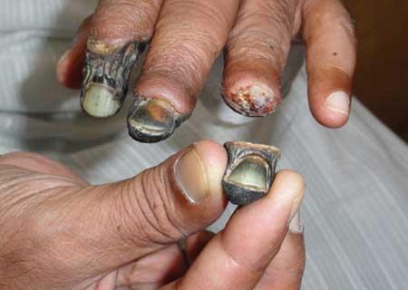 При серьезных холодовых травмах возможен некроз пальцев рук.