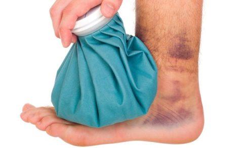 Прикладывание холода как метод борьбы с болевым шоком во время травмы