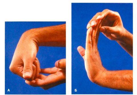 Примеры разработки контрактуры пальцев