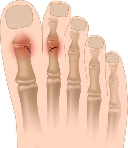 Разновидности переломов пальцев на ногах