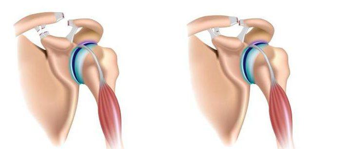 Классификация переломов и вывихов плечевого сустава 11 лучших упражнений для лечения артроза тазобедренных суставов