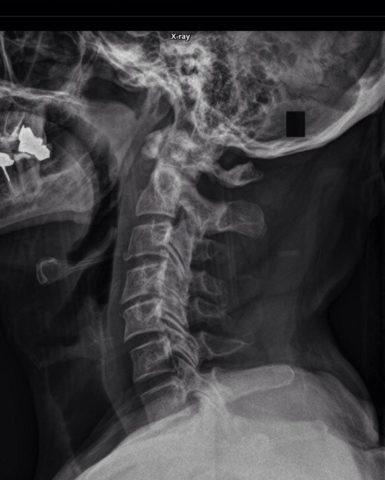 Рентгенологический снимок нарушенной целостности первого шейного позвонка