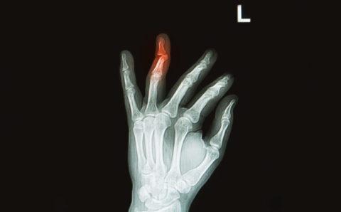 Рентгенологический снимок со смещенными фрагментами кости пальца