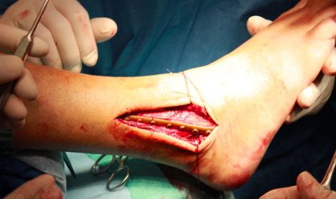 Репозиция сустава титановой пластиной